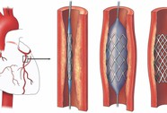 Stent thế hệ mới cho bệnh nhân mạch vành