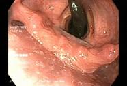 Vắt dài 10 cm ngọ nguậy trong khí quản bệnh nhân