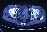 Tái tạo bàng quang bị ung thư bằng ruột non