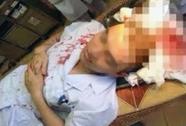 Phó khoa hồi sức cấp cứu bị bố bệnh nhi đánh khâu 7 mũi