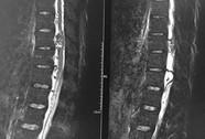 Thoát cảnh ngồi xe lăn sau 1 năm mắc bệnh hiếm gặp