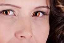 Halloween: bệnh nhân đau, mù mắt gia tăng