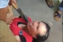Dí dao vào cổ người phụ nữ 2 lần bị nghi bắt cóc trẻ em