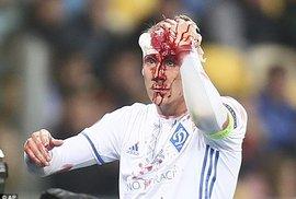 Không chiến nảy lửa, sao Dynamo Kiev vỡ đầu