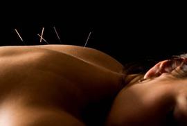 Châm cứu giúp giảm đau bụng kinh