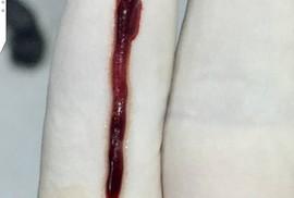 """""""Lôi"""" được cục máu đông gây đột quỵ dài nhất Việt Nam"""