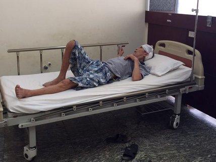 Đang chế tạo thì viên đạn phát nổ, người đàn ông nhập viện