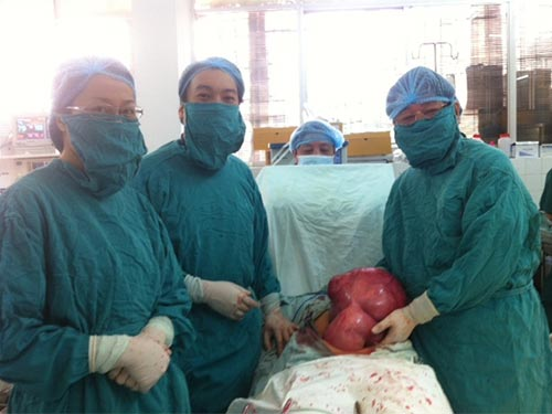 Khối u xơ tử cung nặng gần 10 kg đã được bóc tách ra khỏi cơ thể bệnh nhân