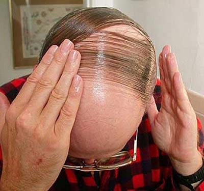 Phát hiện mới mở ra triển vọng chữa chứng hói đầu và tái tạo da  Ảnh: Healthpedic