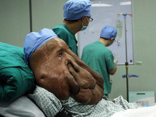Khối u trên mặt khiến Huang bị gù, mù và chỉ cao 1,35 m