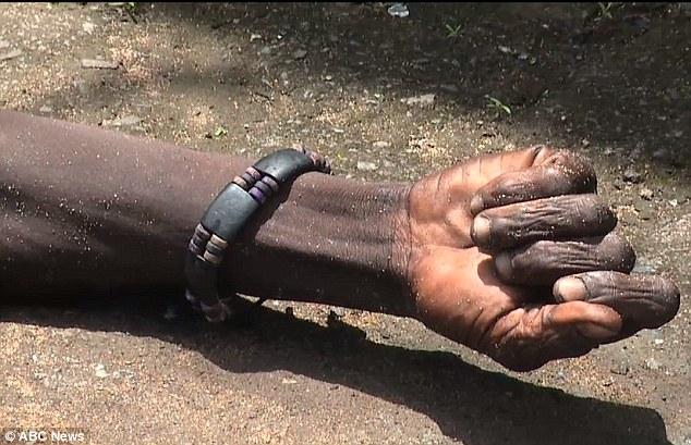 Cánh tay nạn nhân cố gắng cử động. Ảnh: ABC News