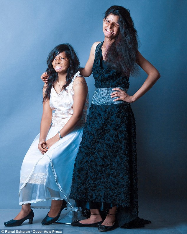Rupa and Rita have spent years hiding their faces but have now bravely come forward for the shoot