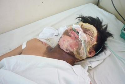 Nạn nhân Đặng Kim Hoàng đang được điều trị tại Bệnh viện Đa khoa tỉnh.