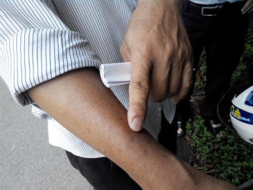 Ông H. đang hoang mang, lo lắng vì bị người nghiện có HIV cắn vào tay