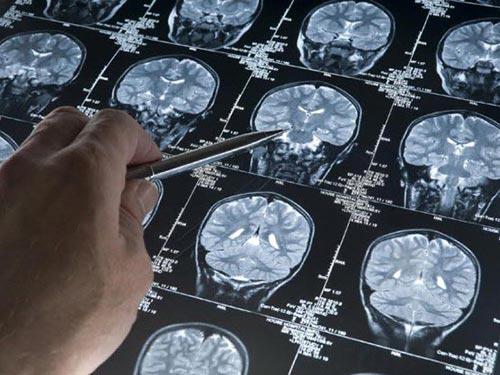 Quét não cho thấy mảng amyloid tích tụ bên trong Ảnh: REDORBID.COM