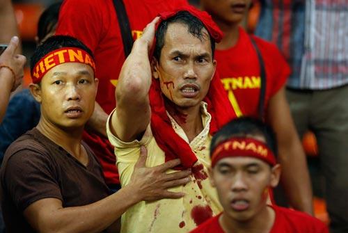 Một nam CĐV Việt Nam đổ máu trên khán đài sân Shah Alam Ảnh: REUTERS
