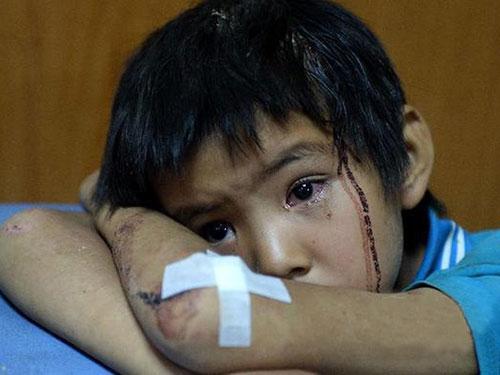 Ánh mắt thất thần của một đứa bé ở bệnh viện Lỗ Điện đêm 3-8. Ảnh: TÂN HOA XÃ