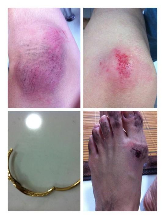 TP HCM: Rộ nhiều vụ cướp nhắm vào người nổi tiếng