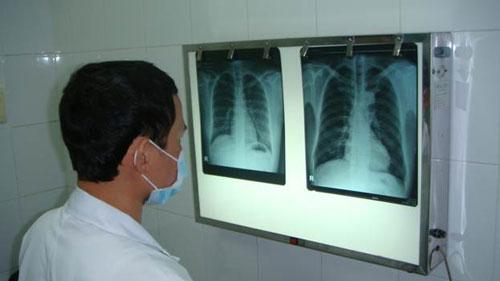 Khảo sát lồng ngực bằng phim X-quang Ảnh: V.H