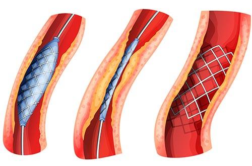 Phương pháp đặt stent can thiệp nội mạch giúp bệnh nhân nhanh chóng phục hồi sau mổ