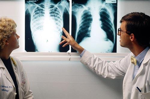 Cần phát hiện sớm những dấu hiệu của bệnh lao phổi để điều trị kịp thời Ảnh: DAILYMAIL