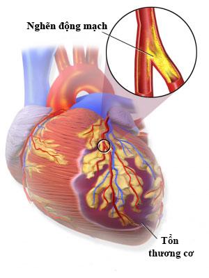 Minh họa tình trạng nhồi máu cơ tim Ảnh: MEDICAL XPRESS