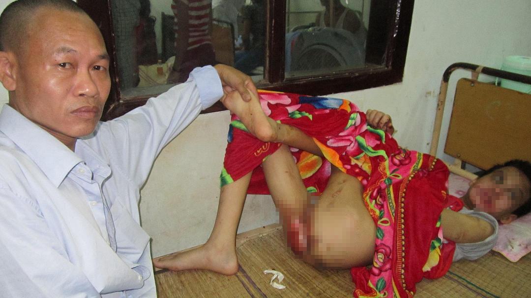Cháu Nguyễn Văn Tú với nhiều vết thương trên người do bị hành hạ dã man đang điều trị tại bệnh viện