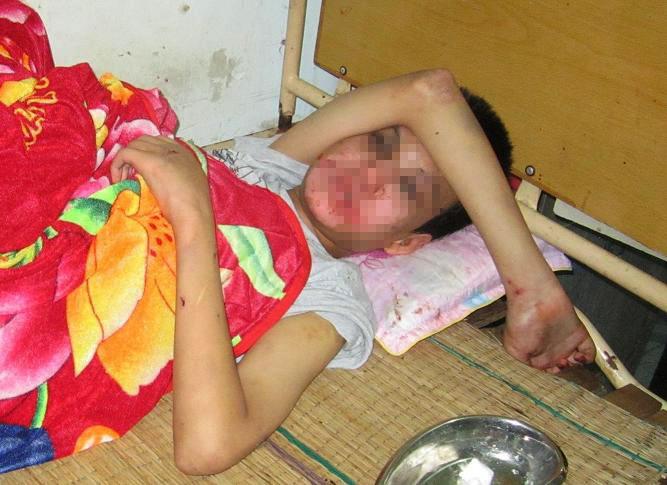 Sau 5 ngày điều trị tại bệnh viện, cháu Tú vẫn chưa hết hoảng loạn sau khi bị hành hạ dã man