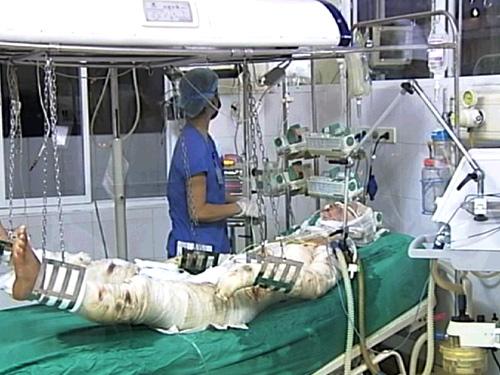 Một chiến sĩ bị thương trong vụ máy bay Mi 171 rơi đang điều trị tại Viện Bỏng quốc gia