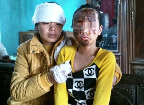 Chị Đỗ Thị Lệ và con gái bị thương trong vụ nổ chiếc đài Cassette là quà tặng sinh nhật