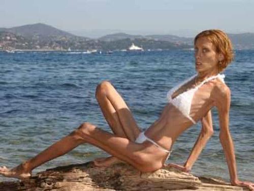 Isabelle Caro - người mẫu Pháp có thân hình quá gầy gò gây sốc. Cô qua đời ở tuổi 28 vì chứng biếng ăn