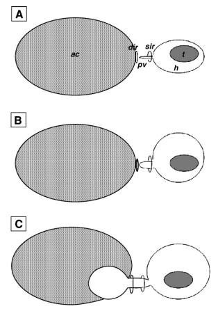Các giai đoạn hình thành tràn dịch màng tinh hoàn và bụng