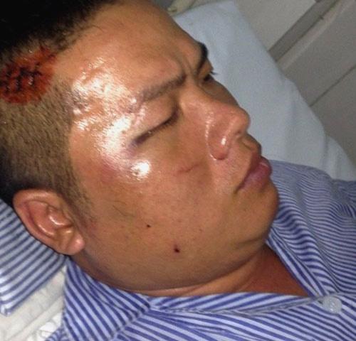 Đại ca giang hồ đất Cảng Vũ Xuân Nguyên - tức Nguyên béo, bị đàn em lấy số - nằm điều trị trong bệnh viện sau vụ đấu súng kinh hoàng - Ảnh: CTV