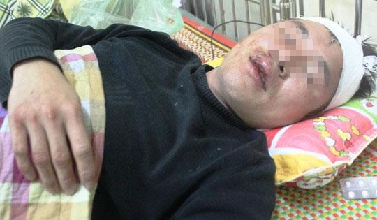 Anh Quỳnh đang điều trị tại bệnh viện