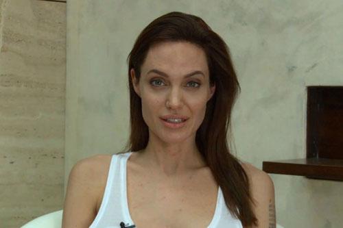 Angelina Jolie bị thủy đậu