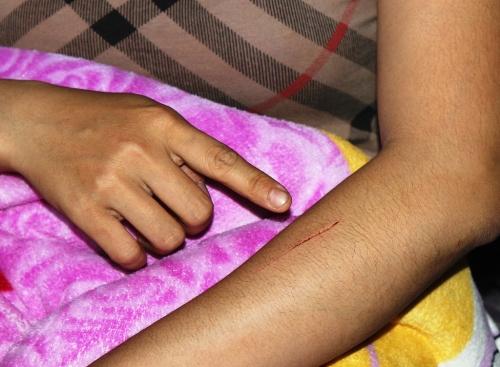 Vết thương bị rạch ở tay chị T.D