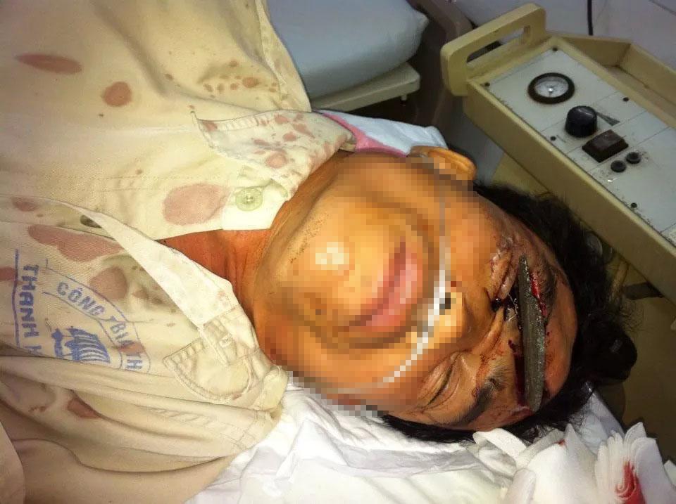 Nạn nhân được chuyển đến cấp cứu với miếng đá dài găm sâu vào đầu (ảnh do bác sĩ cung cấp)