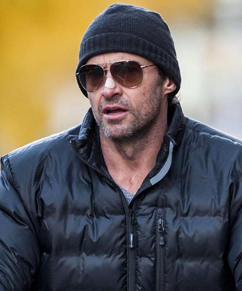 """""""Người sói"""" Hugh Jackman lần 3 điều trị ung thư da"""