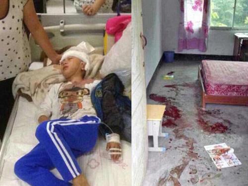 Một học sinh bị giáo viên đánh với máu lênh láng trên nền nhà