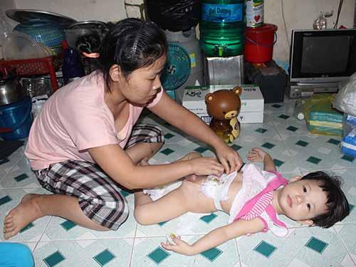 Bé Đặng Bảo Ngọc đang mang bệnh hiểm nghèo cần tiếp tục được phẫu thuật