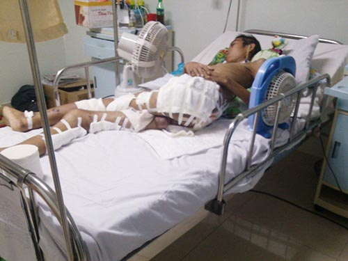 Em Võ Văn Phúc đang điều trị tại Bệnh viện Ung thư Đà Nẵng