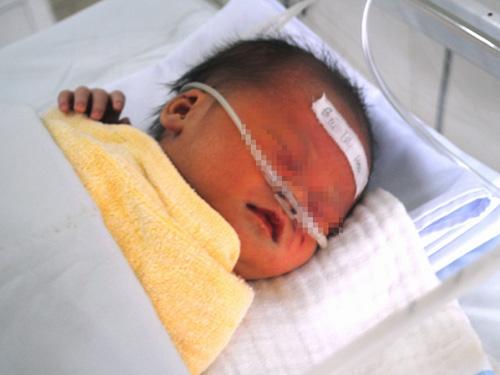 Cháu bé không may bị đẻ rớt xuống bồn cầu đang được chăm sóc tại Bệnh viện Nhi Thanh Hóa