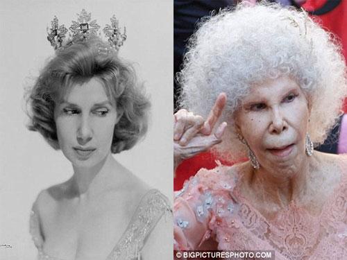 Nữ công tước Cayatena khi còn trẻ và gương mặt biến dạng lúc về già