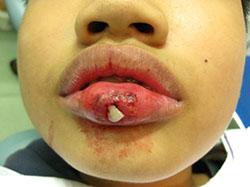 Tai nạn hy hữu: Răng môi lẫn lộn