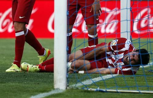 Costa dính chấn thương sau khi ghi bàn
