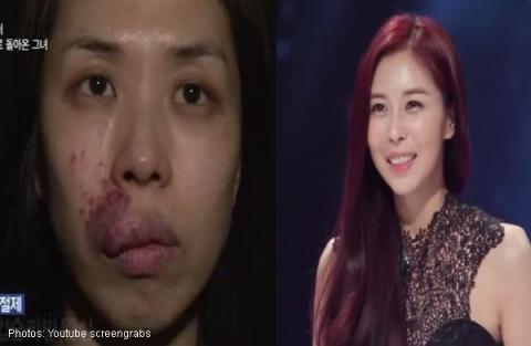 Kim Hee-Eun trước và sau phẫu thuậtthẫm mỹ
