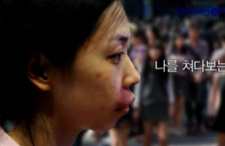Gương mặt bị biến dạng khiếnKim Hee-Eun tự ti trong giao tiếp