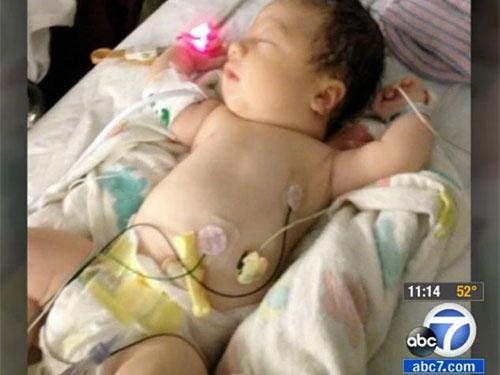 Bé gái sinh ra không có máu