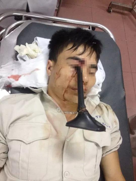Nam thanh niên nhập viện với chiếc cán gương ô tô cắm sâu vào mắt