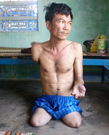 Ông Nguyễn Hùng Hải bị tắc động mạch, dẫn đến hoại tử tay chân - Ảnh: Vân Hằng